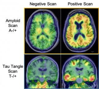 Example PET scans